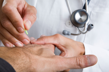 treatment of acupuncture for anxiety