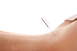 acupuncture phoenix